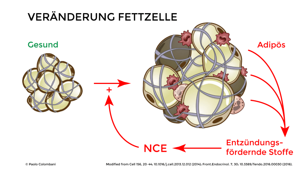 Teufelskreis NCE - Adipositas