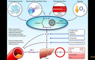 NLRP3-Inflammasom, IL-1b, IL-6, CRP pathway